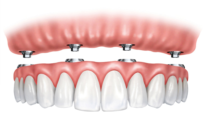 Hybrid Dentures | St. George Family Dental | Fulton MO